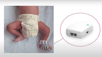 Photo of NemoCare: An Innovative Device to Reduce Infant Mortality Rate